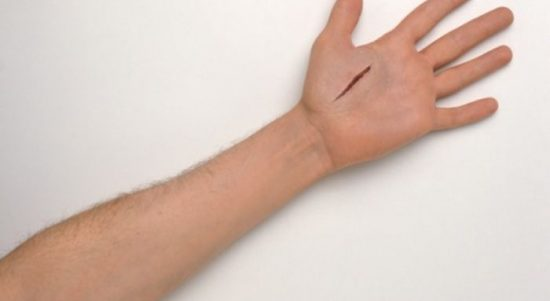 cara mengobati luka dalam